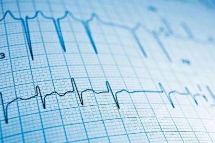 心电监测领域,AI诊断能否落地医院?便携产品如何突破天花板?