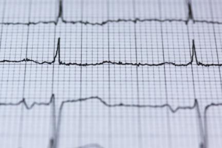 院外心电监护市场被看好,「粒恩医疗」通过设备+专职医疗服务入局