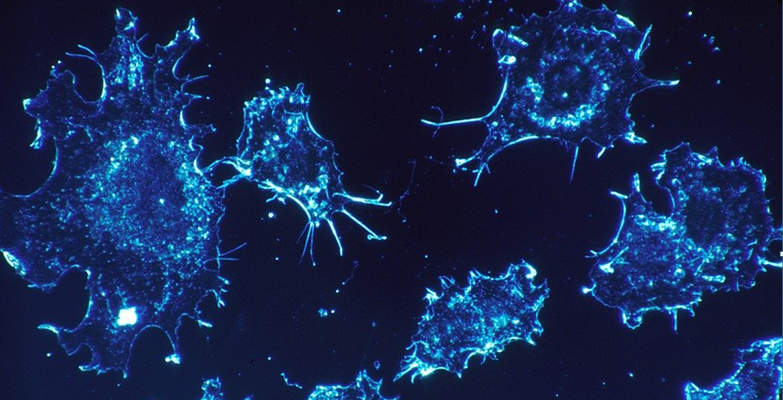 利用新一代TILs疗法治疗实体瘤,「劲风生物」完成一千万美元Pre-A轮融资