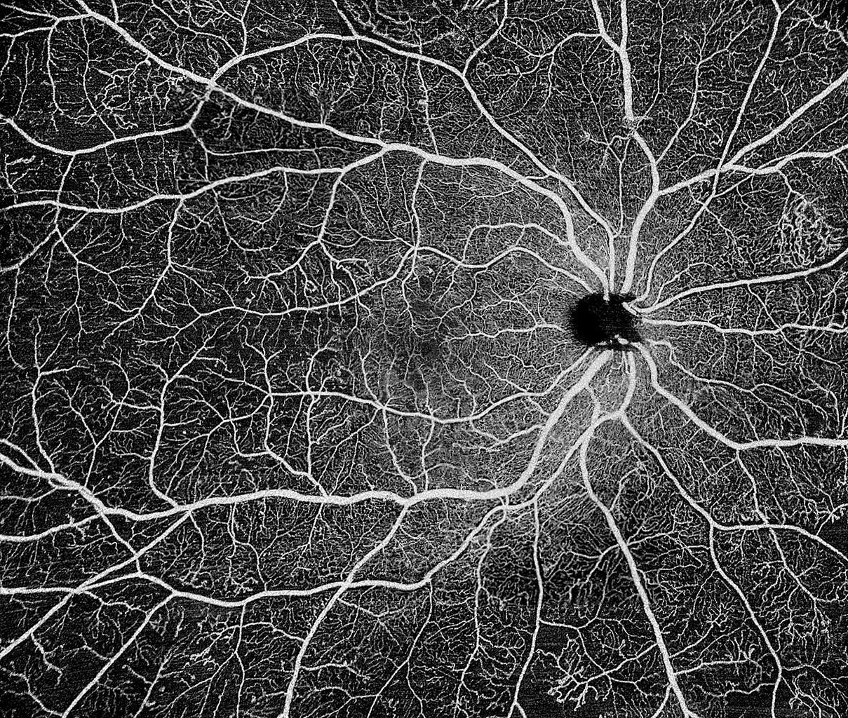 专注高端眼科影像设备,「视微影像」完成超亿元B轮融资